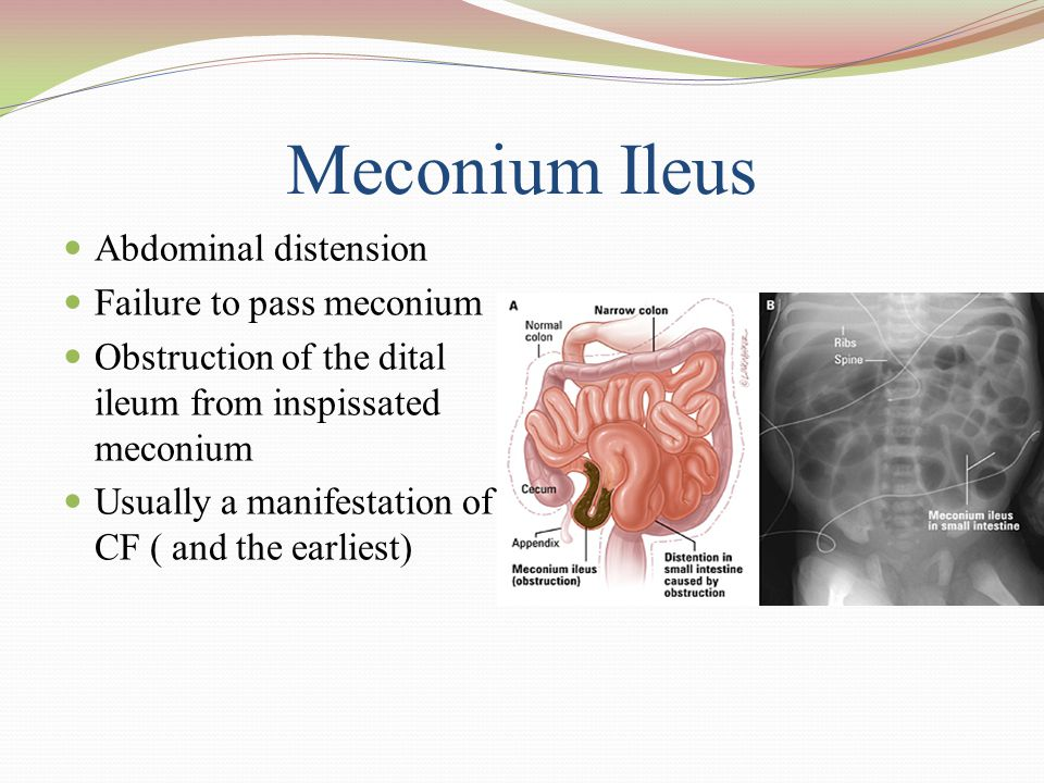 Meconium Ileus Abdominal distension Failure to pass meconium