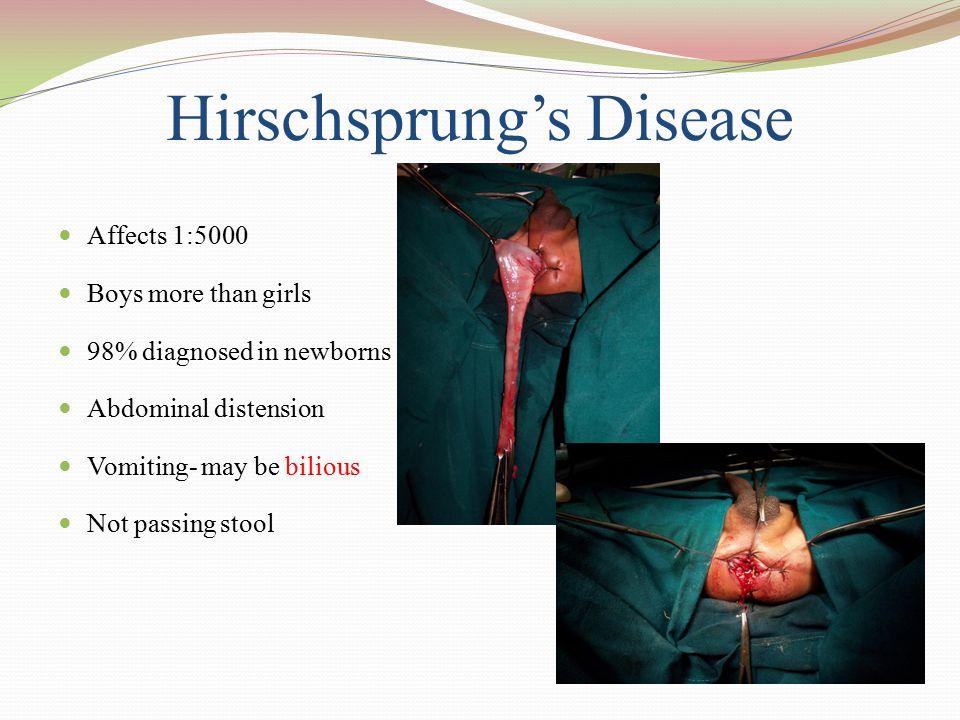 Hirschsprung's Disease
