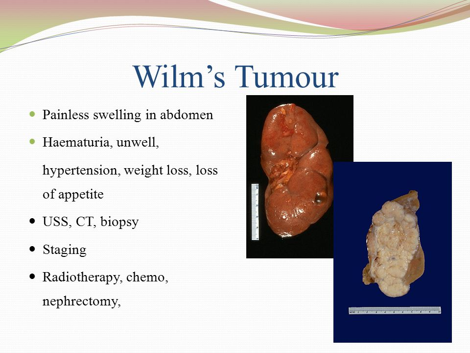 Wilm's Tumour Painless swelling in abdomen Haematuria, unwell,