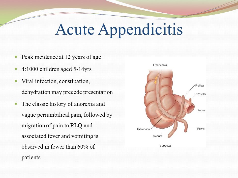 Acute Appendicitis Peak incidence at 12 years of age
