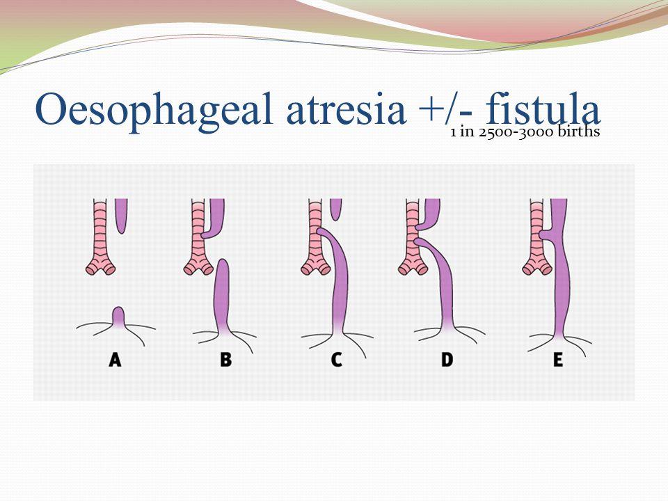 Oesophageal atresia +/- fistula
