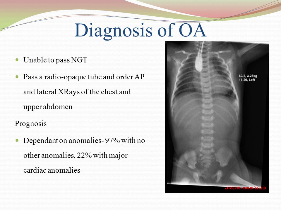 Diagnosis of OA Unable to pass NGT