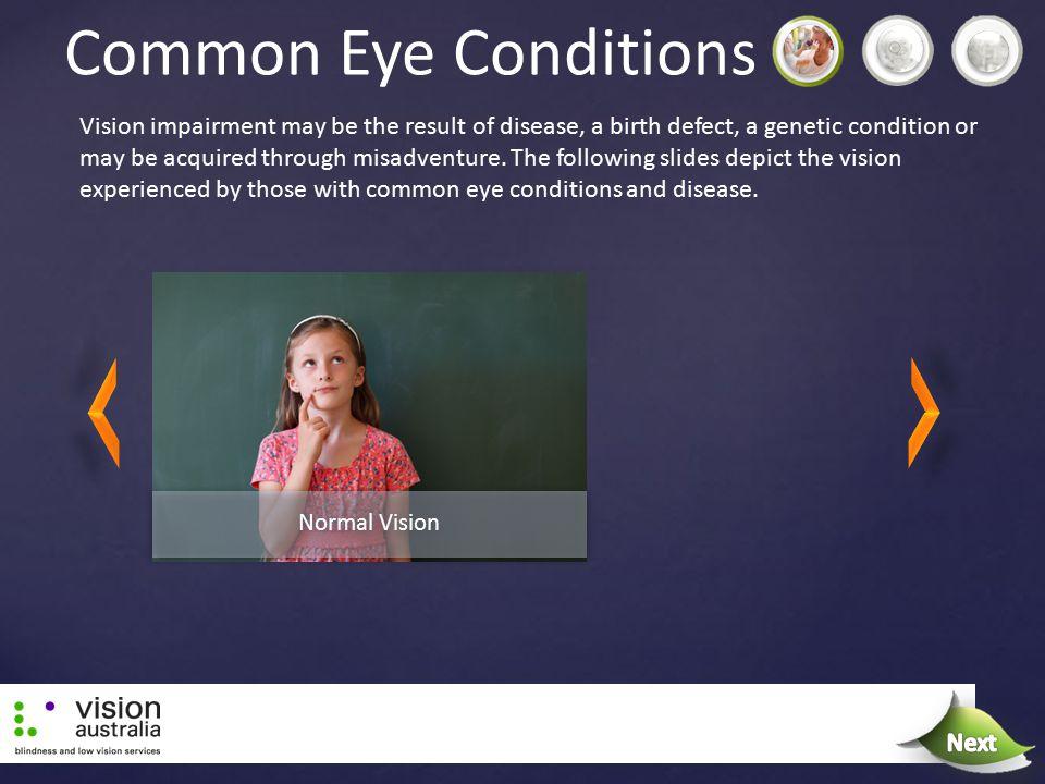 Common Eye Conditions Next