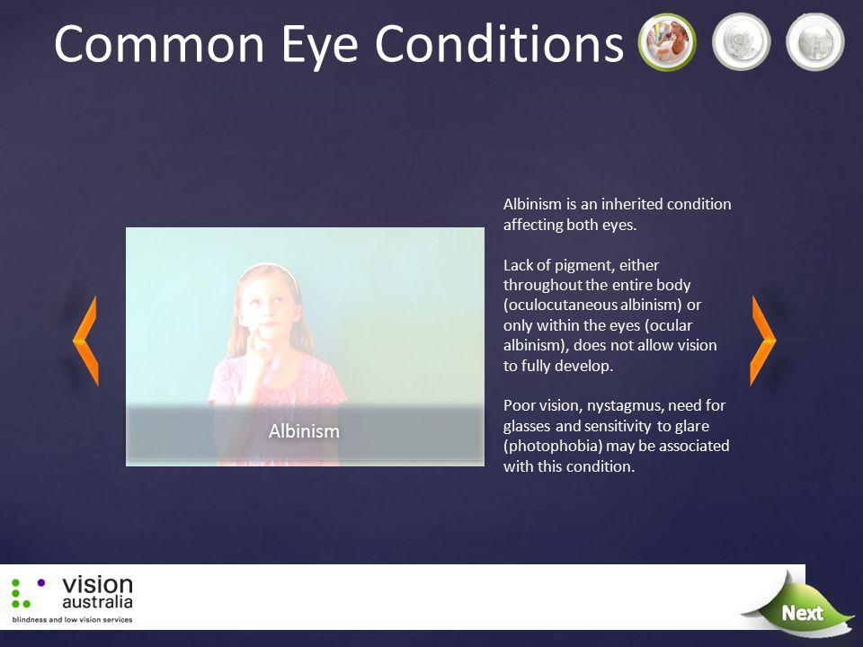 Common Eye Conditions Next Next Albinism