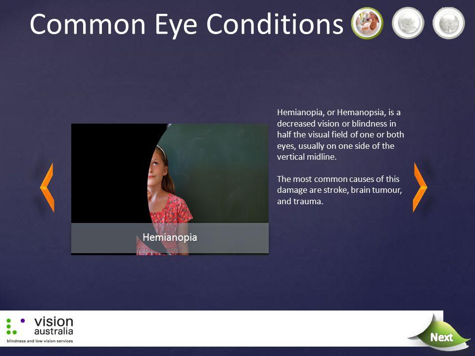 Common Eye Conditions Next Next Hemianopia