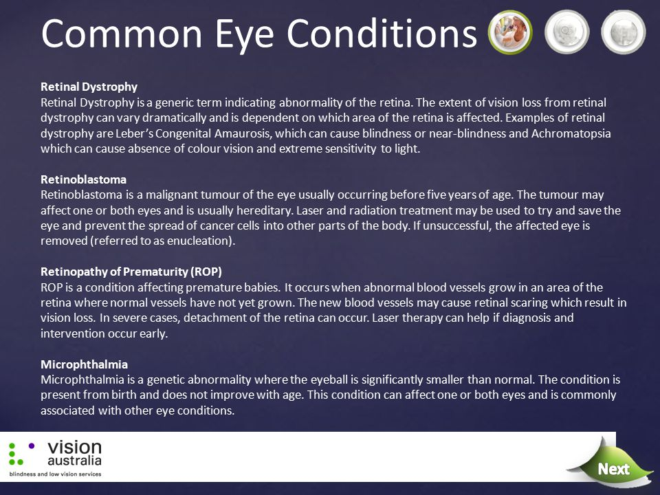 Common Eye Conditions Next Next Retinal Dystrophy