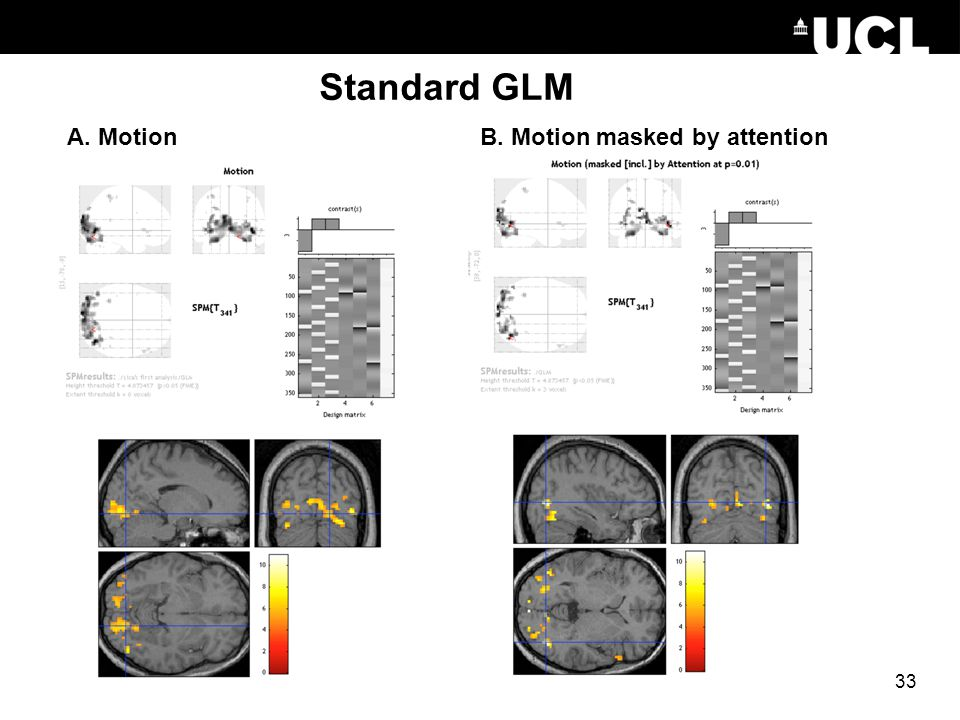 Standard GLM A. Motion B. Motion masked by attention