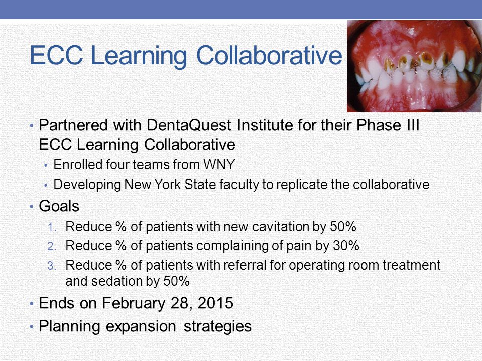 Collaborative Teaching Nyc ~ State oral health plan and prevention agenda update ppt