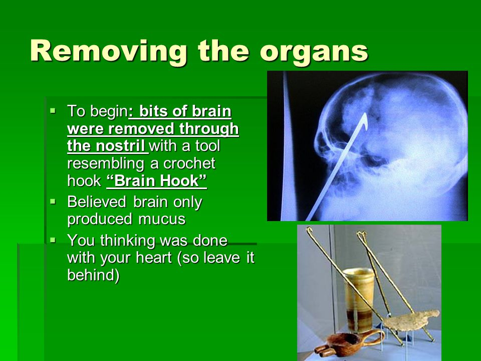 Removing the organs To begin: bits of brain were removed through the nostril with a tool resembling a crochet hook Brain Hook