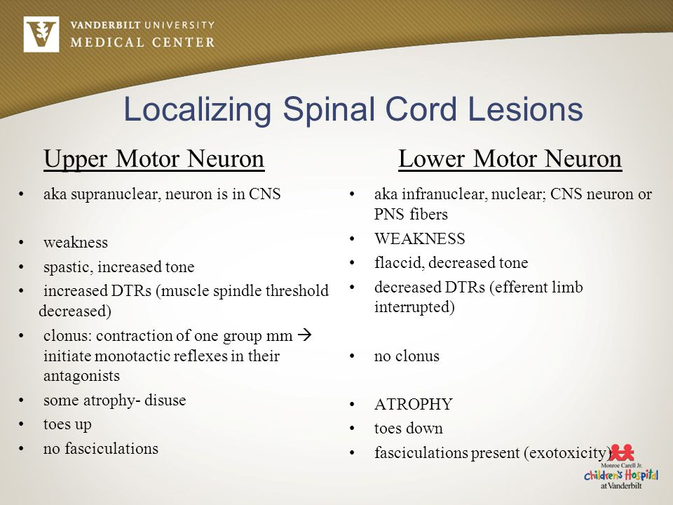 Localizing Spinal Cord Lesions