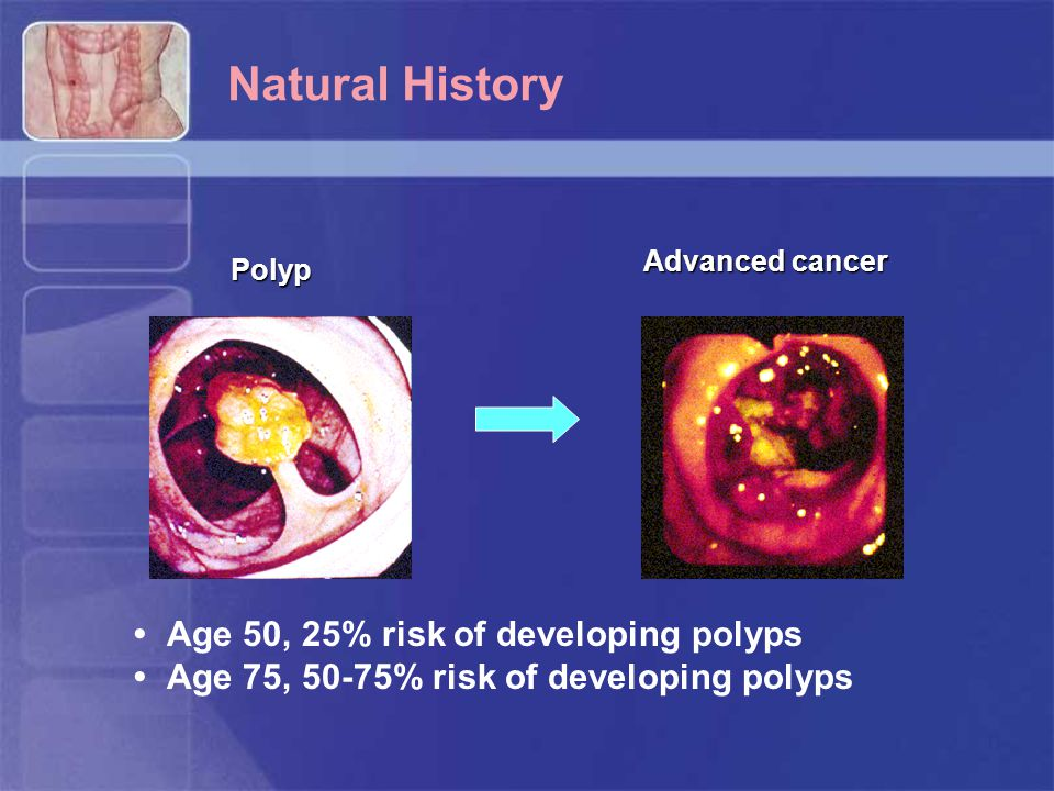 Natural History • Age 50, 25% risk of developing polyps