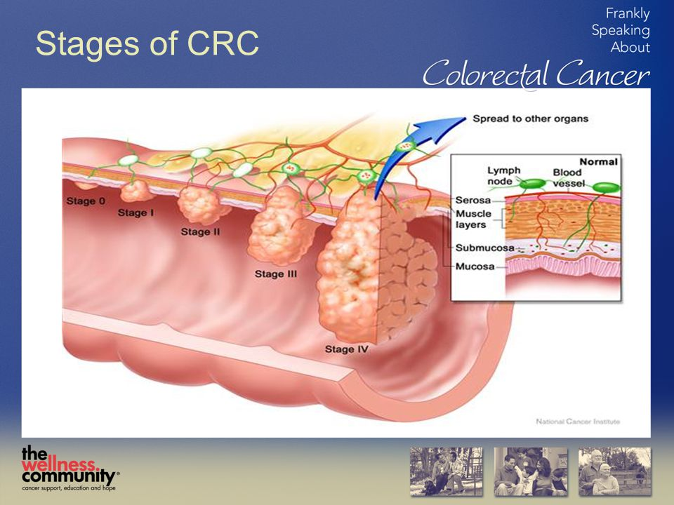 Stages of CRC