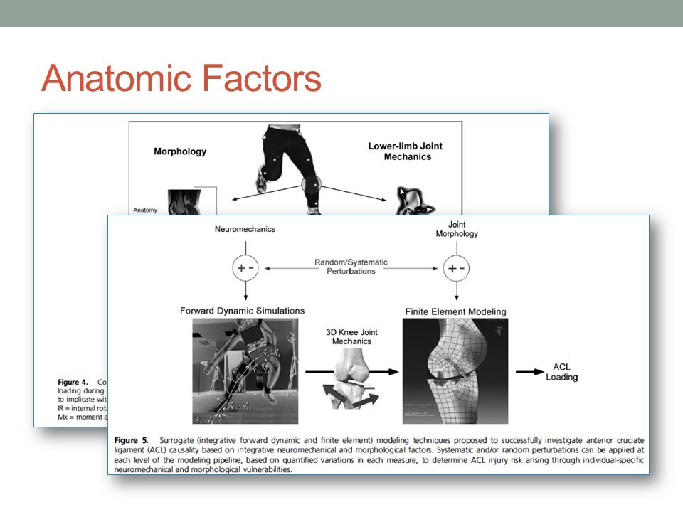 Anatomic Factors