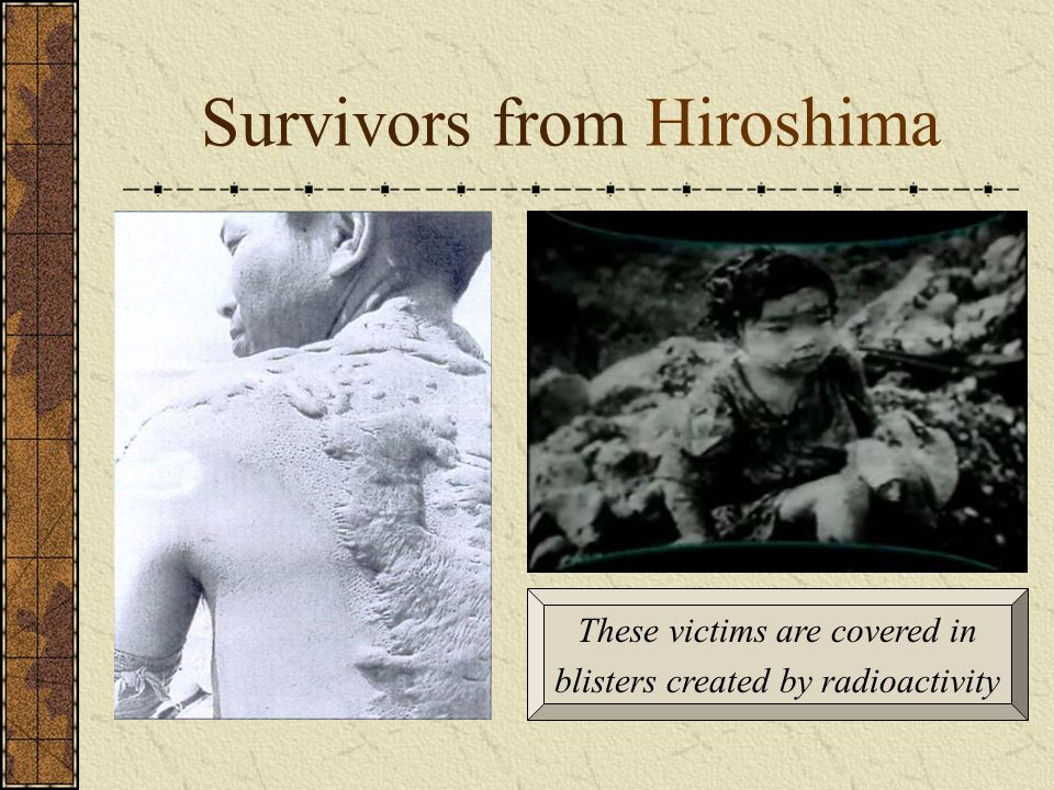 Survivors from Hiroshima