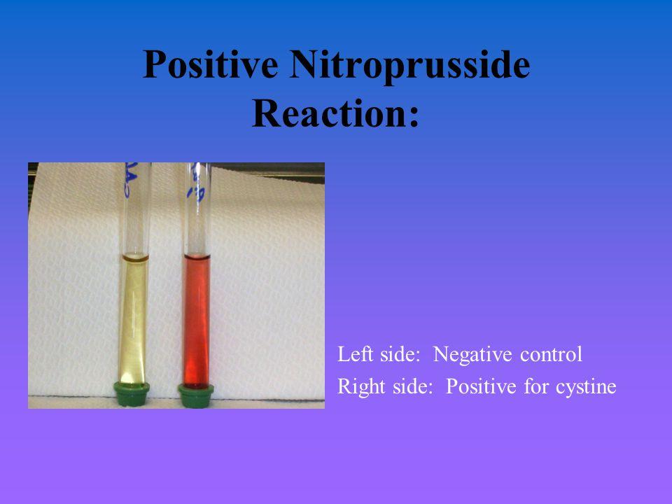 Positive Nitroprusside Reaction: