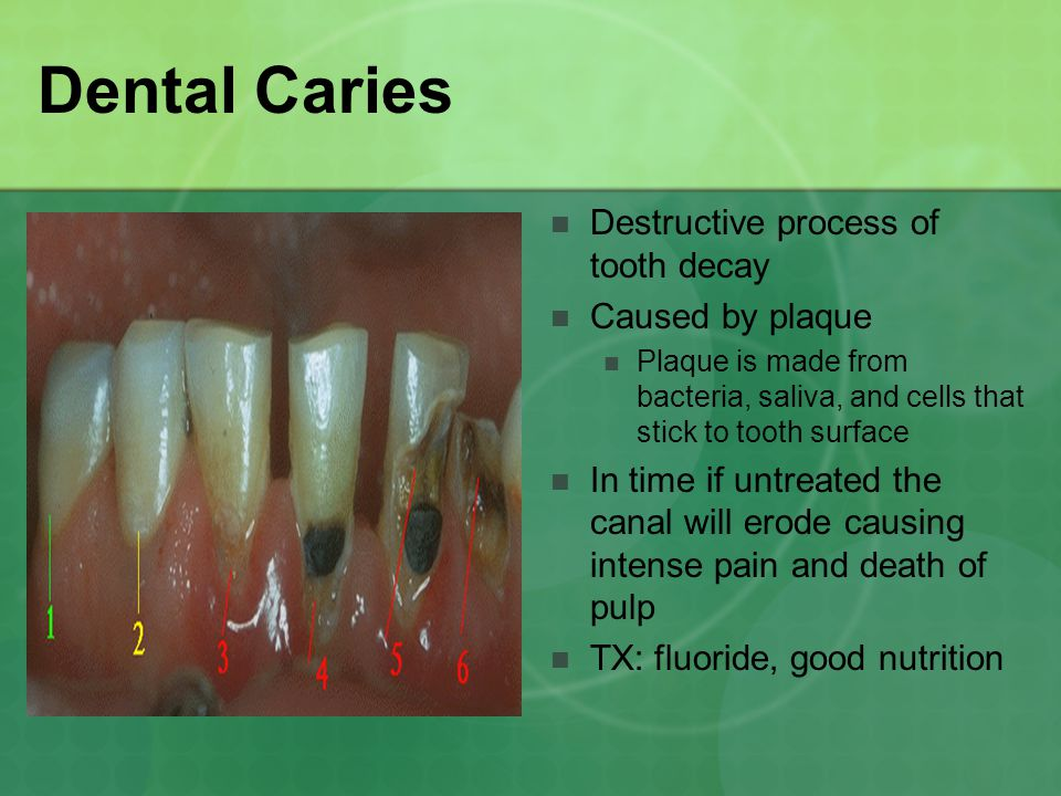 Dental Caries Destructive process of tooth decay Caused by plaque