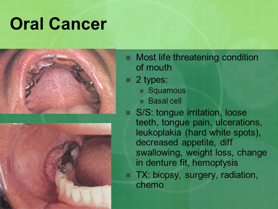 Oral Cancer Most life threatening condition of mouth 2 types: