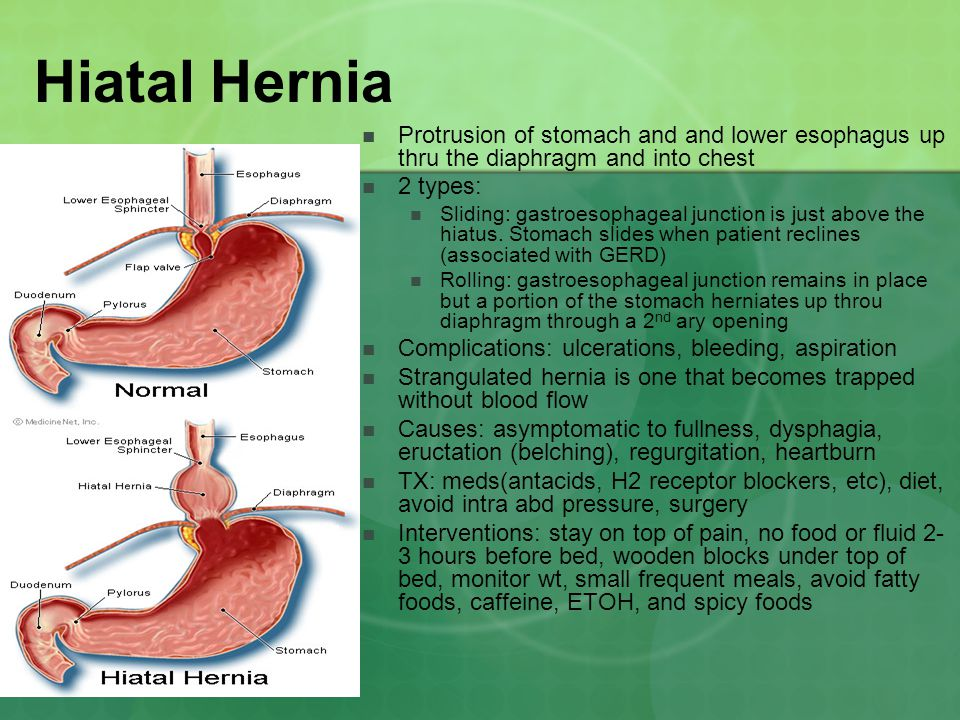Hiatal Hernia Protrusion of stomach and and lower esophagus up thru the diaphragm and into chest. 2 types: