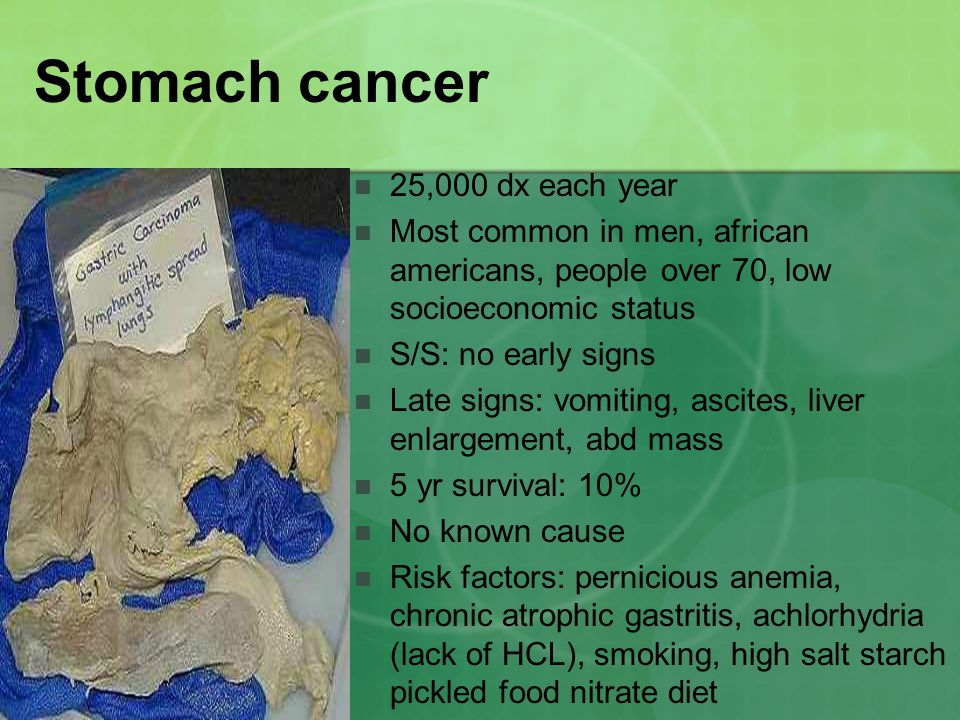 Stomach cancer 25,000 dx each year