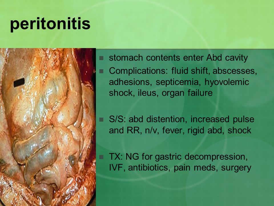peritonitis stomach contents enter Abd cavity