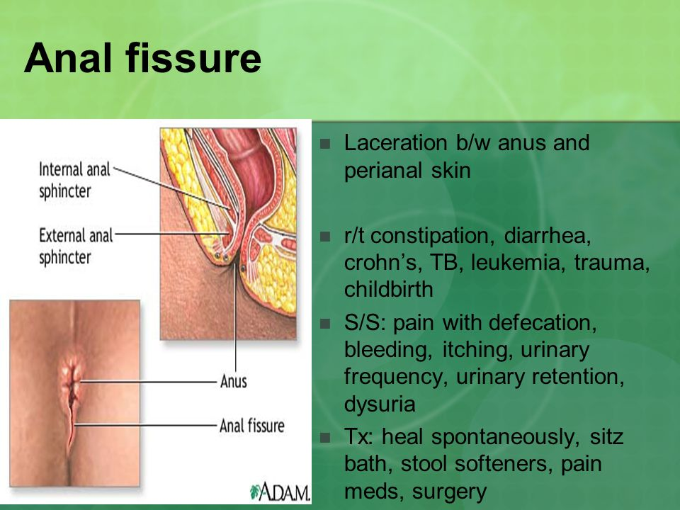 Anal fissure Laceration b/w anus and perianal skin