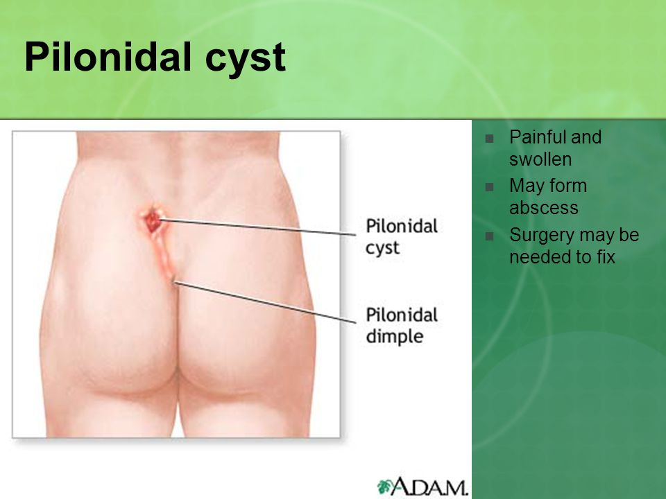 Pilonidal cyst Painful and swollen May form abscess