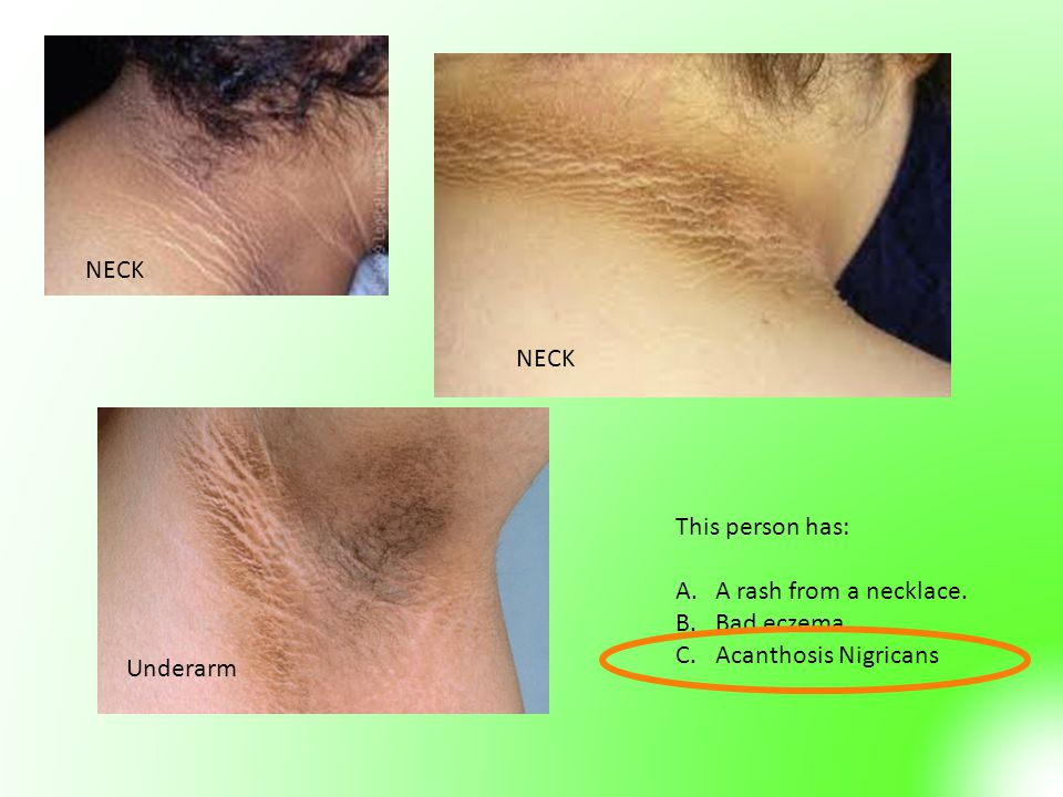 NECK NECK This person has: A rash from a necklace. Bad eczema Acanthosis Nigricans Underarm