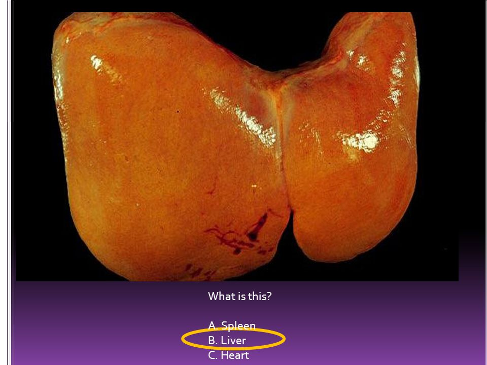 What is this A. Spleen B. Liver C. Heart