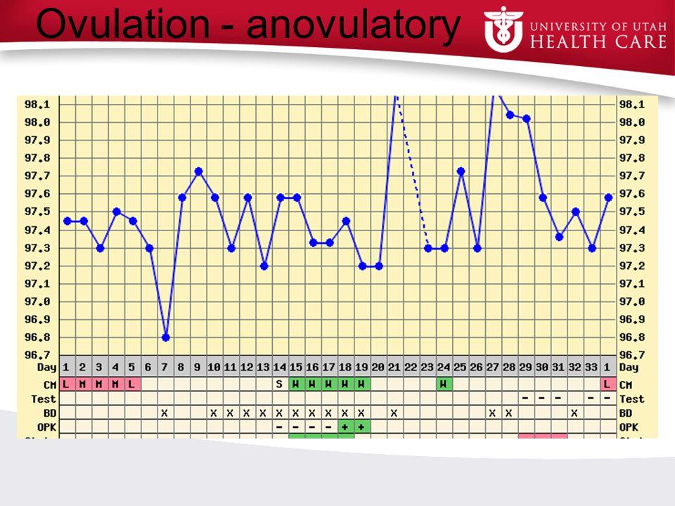 Ovulation - anovulatory