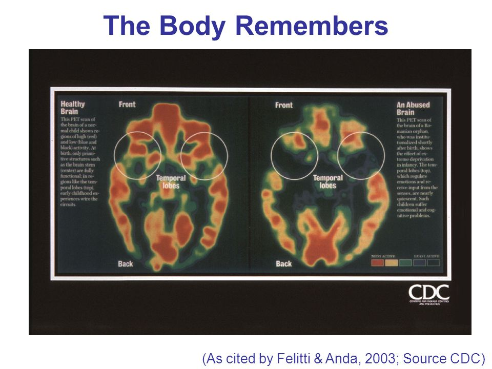 The Body Remembers (As cited by Felitti & Anda, 2003; Source CDC)
