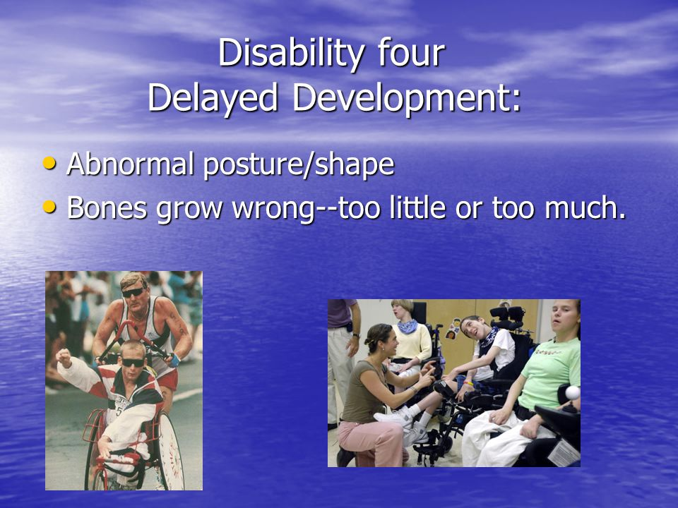 Disability four Delayed Development:
