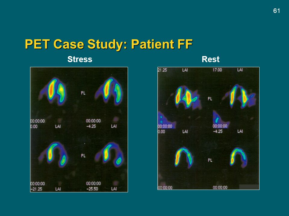 PET Case Study: Patient FF