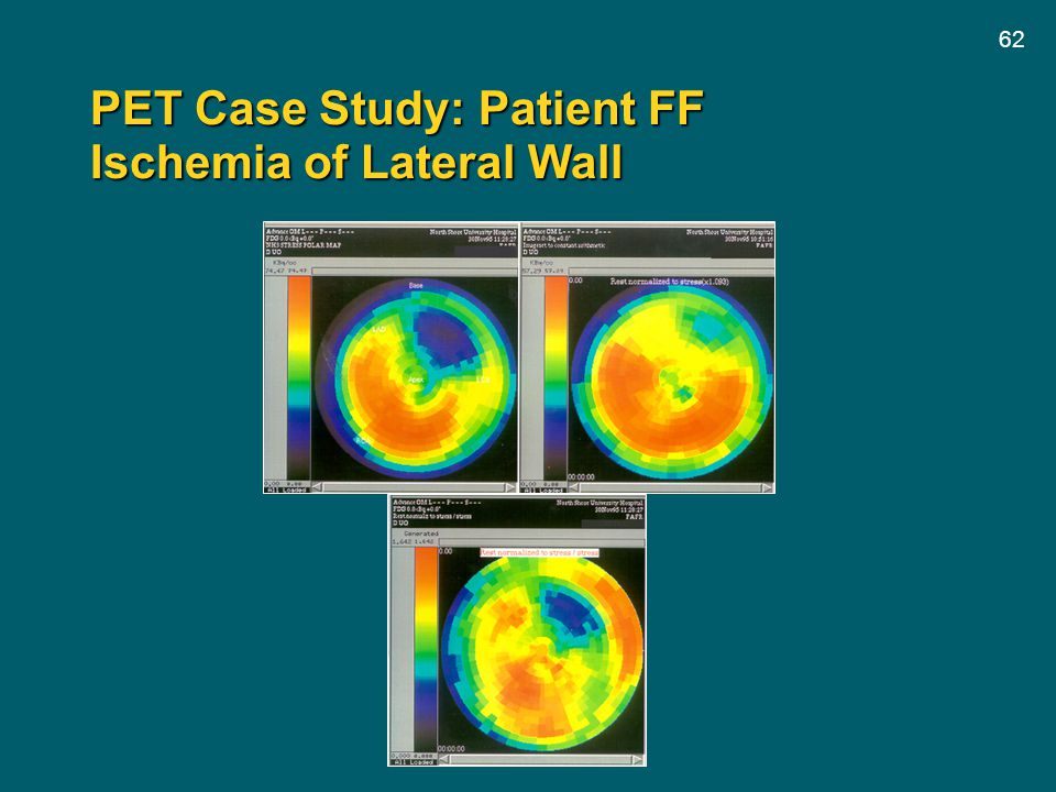 PET Case Study: Patient FF Ischemia of Lateral Wall