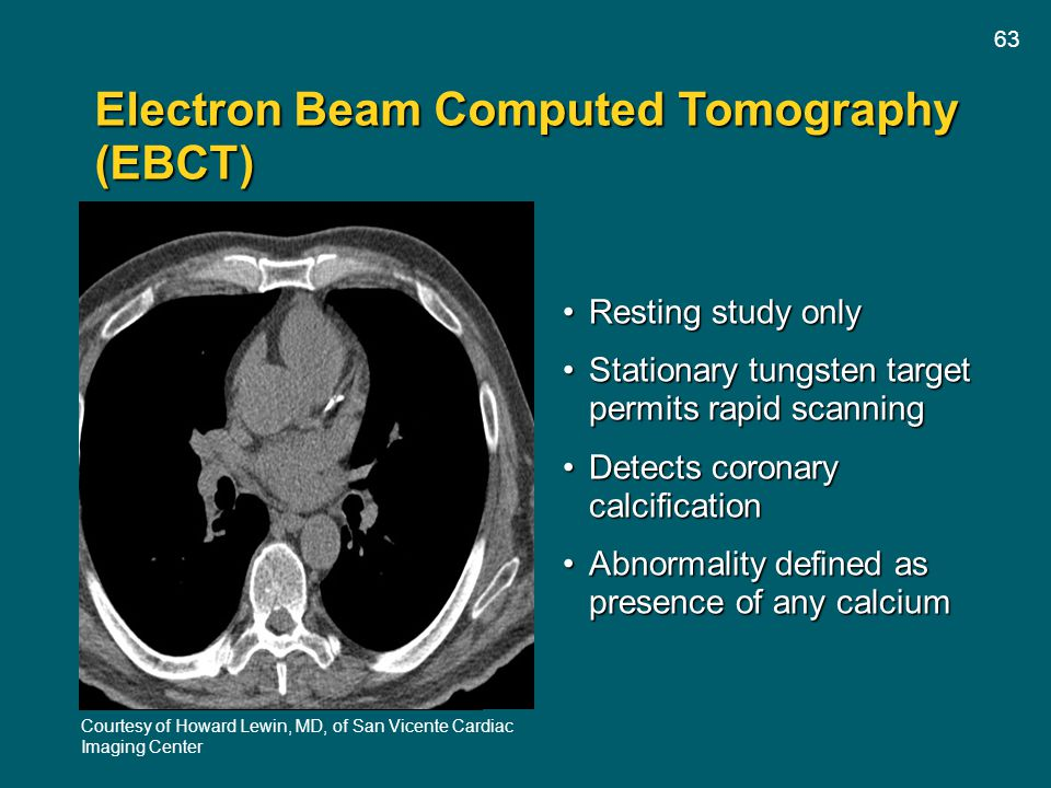 Electron Beam Computed Tomography (EBCT)