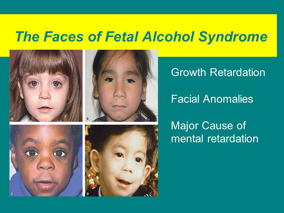 The Faces of Fetal Alcohol Syndrome