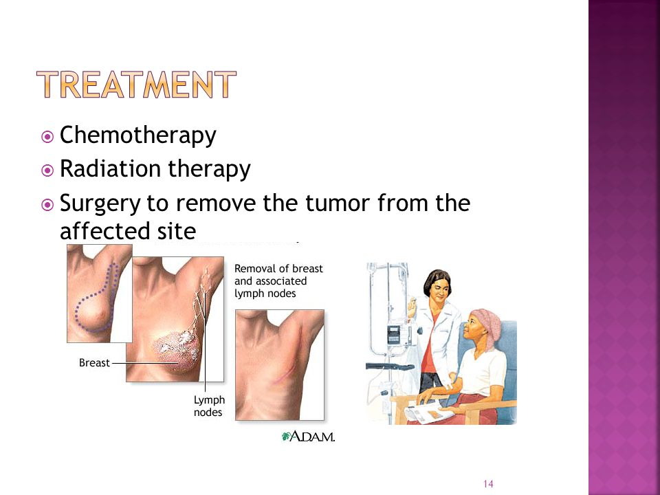 Treatment Chemotherapy Radiation therapy