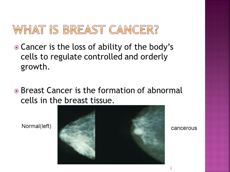 What is breast Cancer Cancer is the loss of ability of the body's cells to regulate controlled and orderly growth.