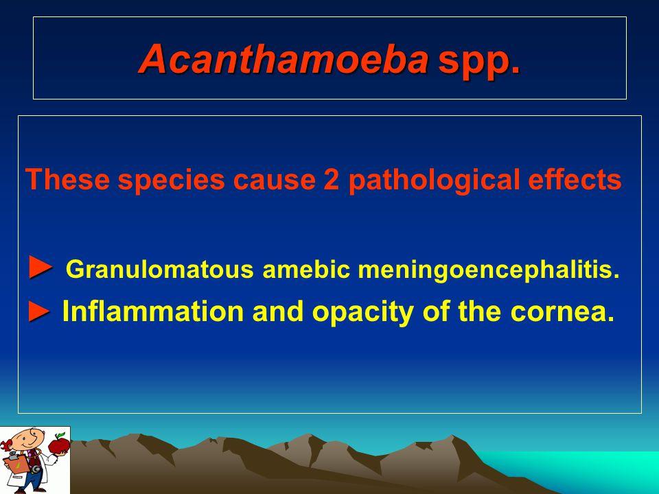 Acanthamoeba spp. ► Granulomatous amebic meningoencephalitis.