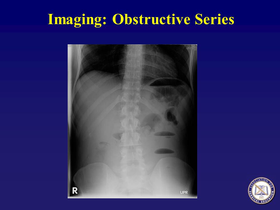 Imaging: Obstructive Series