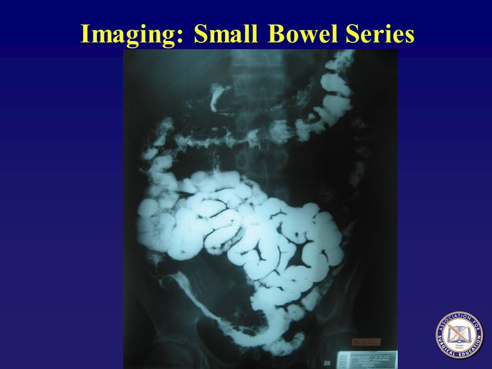 Imaging: Small Bowel Series