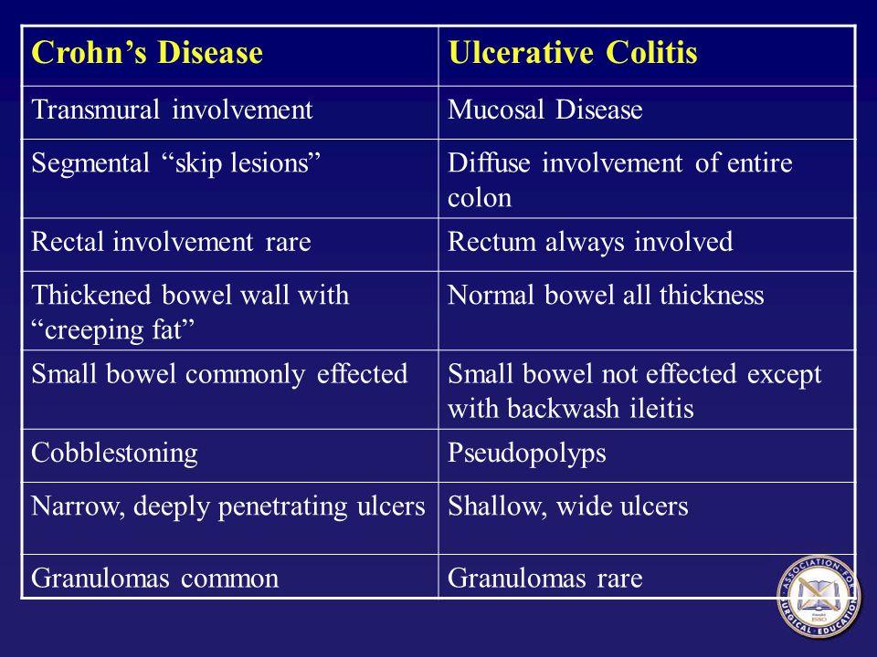 Crohn's Disease Ulcerative Colitis Transmural involvement
