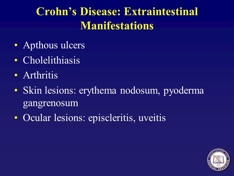 Crohn's Disease: Extraintestinal Manifestations
