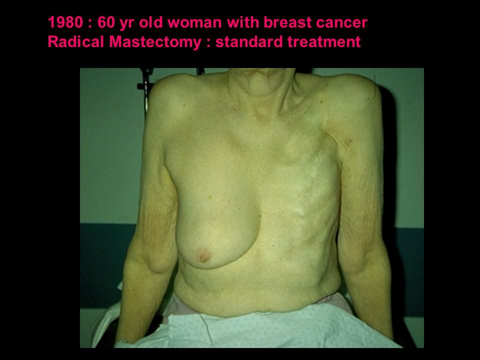 1980 : 60 yr old woman with breast cancer Radical Mastectomy : standard treatment