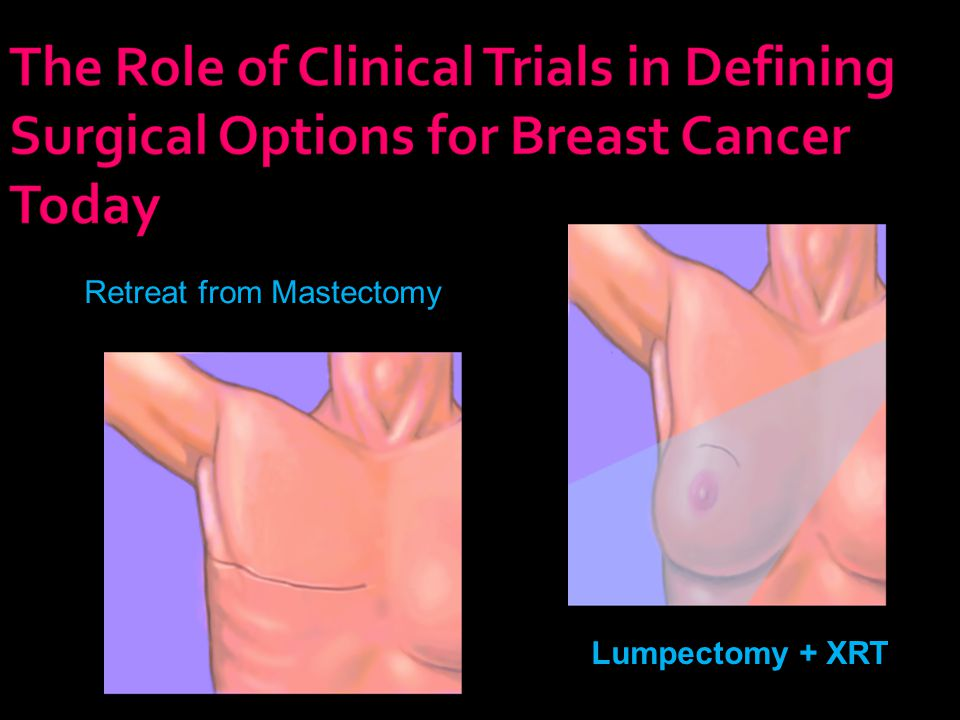 Retreat from Mastectomy