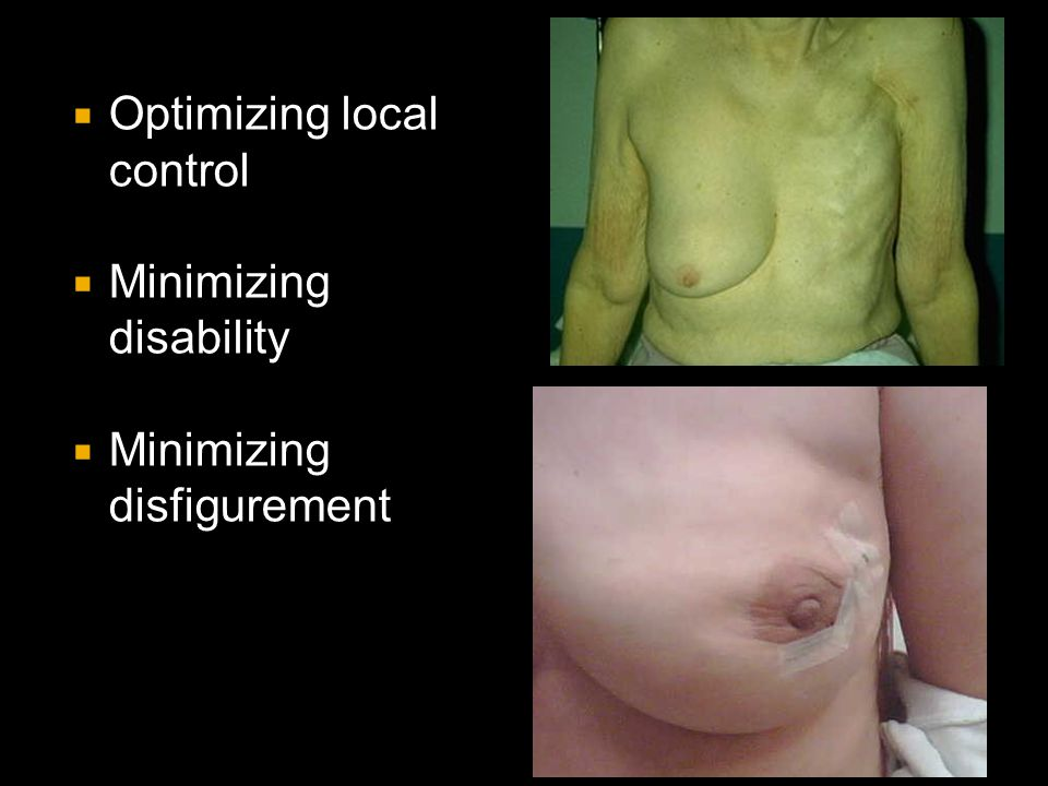 Optimizing local control
