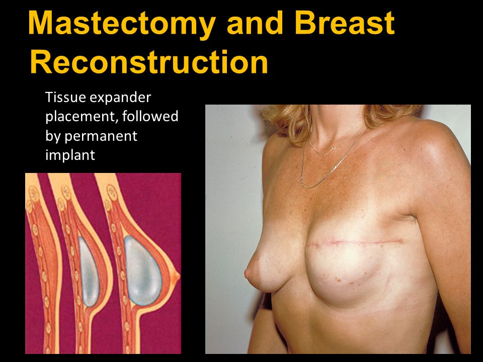 Mastectomy and Breast Reconstruction