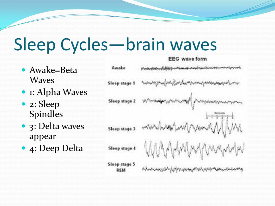 Sleep Cycles—brain waves