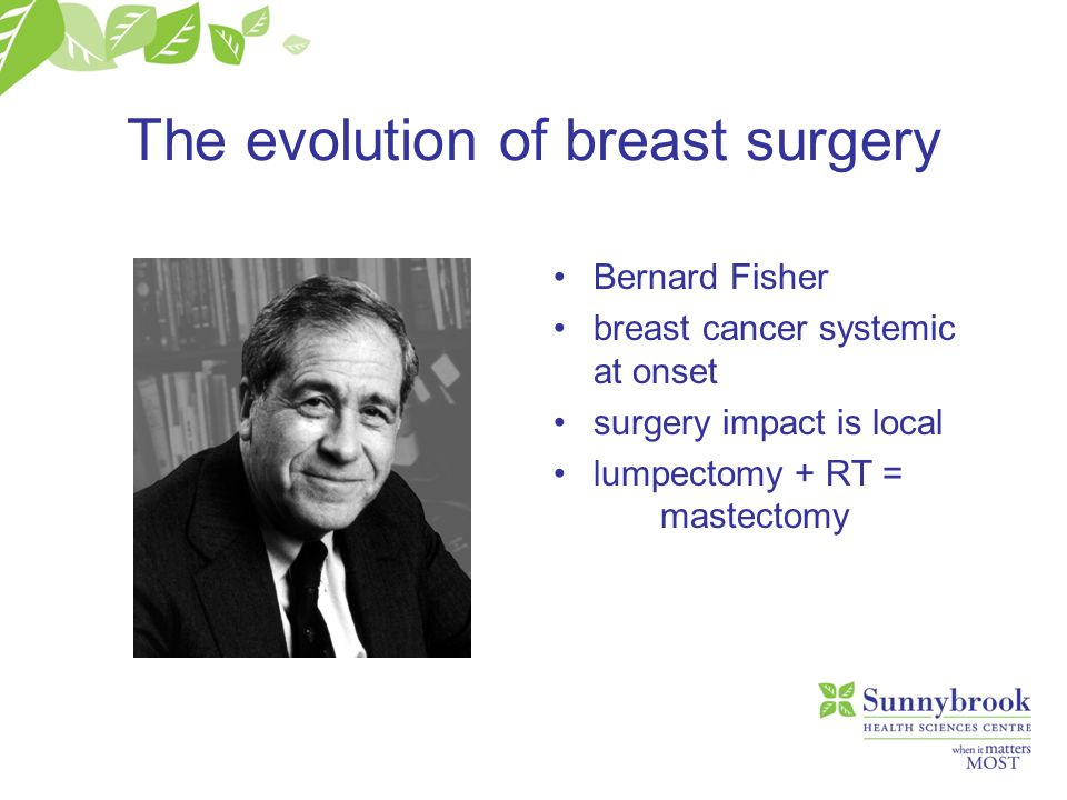 The evolution of breast surgery