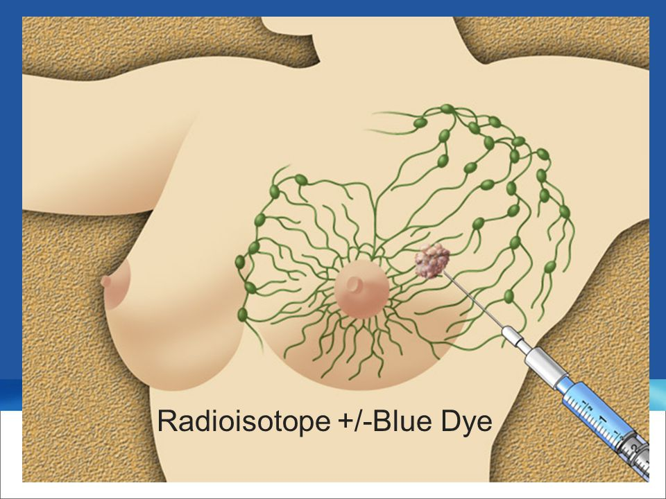 Radioisotope +/-Blue Dye
