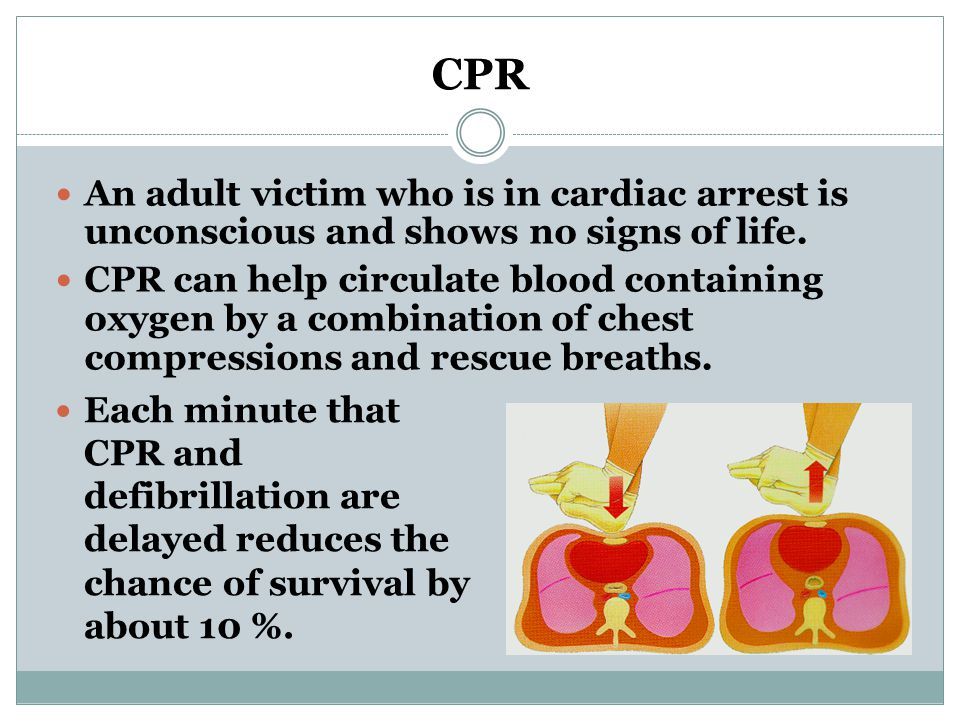 CPR An adult victim who is in cardiac arrest is unconscious and shows no signs of life.